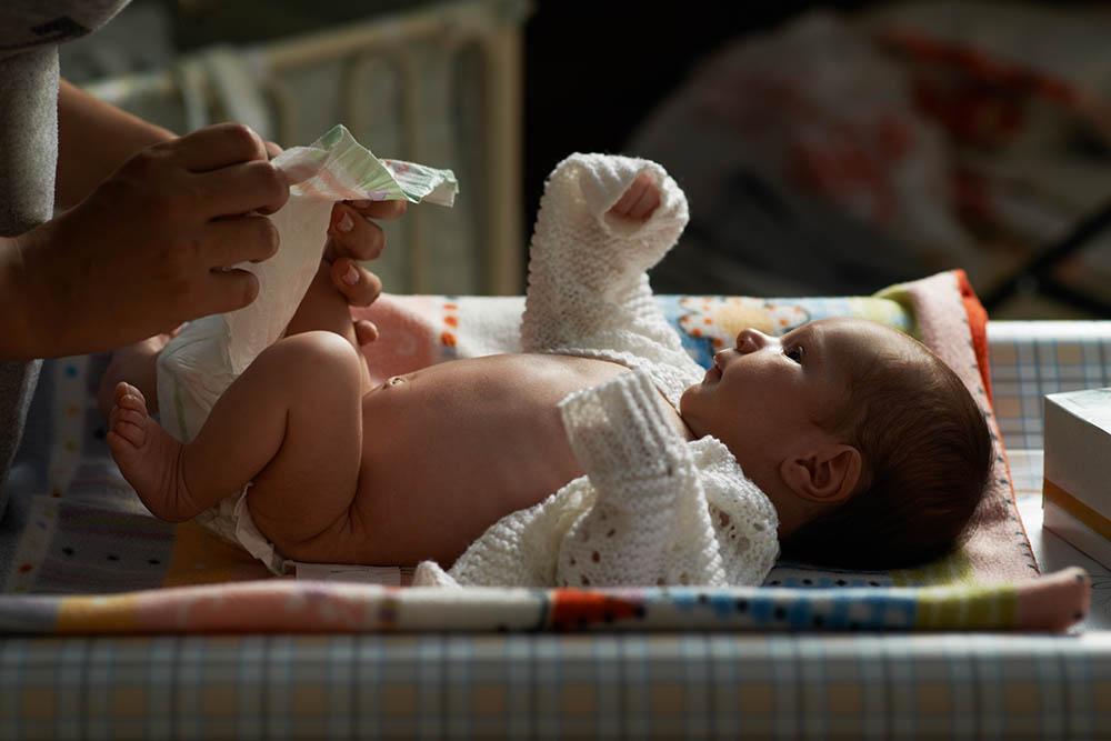 La fimosis en bebés y niños